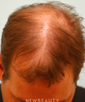 dr-samuel-lam-hair-restoration-b