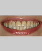 dr-niloufer-hamsayeh-smile-makeover-veneers-b