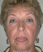 dr-richard-arabitg-facelift-chin-implant-b