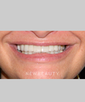 dr-nadja-horst-crowns-veneers-whitening-smile-makeover-b