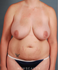 dr-geoffrey-leber-liposuction-tummy-tuck-breast-lift-b
