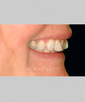 dr-niloufer-hamsayeh-veneers-b