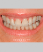 dr-niloufer-hamsayeh-empress-veneers-b