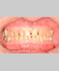 dr-niloufer-hamsayeh-bonding-crowns-veneers-b