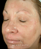 dr-amy-forman-taub-lasers-and-light-based-treatments-b