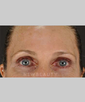 dr-alison-tam-laser-resurfacing-b