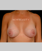 dr-robert-zubowski-silicone-breast-implants-b