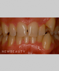 dr-bob-perkins-veneers-orthodontics-b