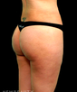 dr-juan-carlos-fuentes-liposuction-b