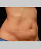 dr-flor-mayoral-coolsculpting-b