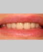 dr-jason-kasarsky-veneers-crowns-b