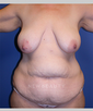 dr-suzanne-quardt-breast-implants-breast-lift-b