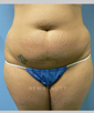 dr-mark-greene-tummy-tuck-liposuction-b