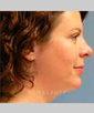 dr-mark-greene-lipo-blepharoplasty-chin-augmentation-rhinoplasty-b