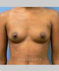 dr-mark-greene-breast-augmentation-breast-lift-b