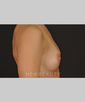 drs-anson-and-higgins-silicone-breast-implants-b