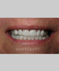 dr-joe-willardsen-veneers-crowns-b