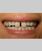 dr-joe-willardsen-veneers-b
