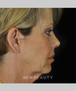 drs-anson-and-higgins-facelift-blepharoplasty-browlift-b