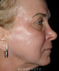 dr-kathleen-judge-fractional-skin-resurfacing-b