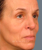 dr-jan-turkle-liquid-facelift-b