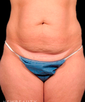 dr-jan-turkle-tummy-tuck-b
