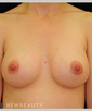 dr-leslie-stevens-breast-enhancement-b