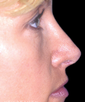 dr-richard-parfitt-rhinoplasty-b