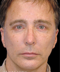 dr-richard-parfitt-facelift-b