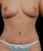 dr-george-weston-breast-augmentation-b