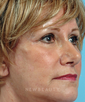 dr-george-weston-blepharoplasty-b