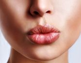 Kiss Your Lip Lines Good-Bye