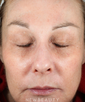 dr-amy-forman-taub-aesthetic-injectables-b