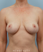 dr-lawrence-koplin-breast-lift-b