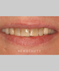 dr-louis-desantis-smile-makeover-veneers-crowns-b