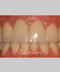 dr-louis-desantis-smile-makeover-crowns-b
