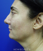 dr-kevin-tehrani-necklift-laser-liposuction-b