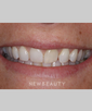 dr-michael-fulbright-veneers-invisalign-b