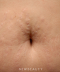 dr-flor-mayoral-stretchmark-treatment-b
