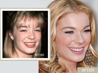 Leann Rimes Smile Makeover From Gappy To Glam Hot Topic