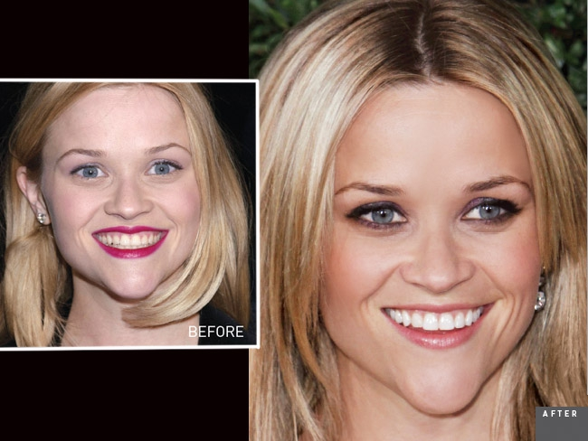 Pictures Of Reese Witherspoon S Smile Hot Topic Newbeauty