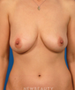 dr-daniel-yamini-breast-lift-lipo-mini-tummy-tuck-mommy-makeover-b