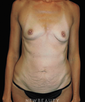 dr-jeremy-benedetti-mommy-makeover-tummy-tuck-breast-augmentation-b
