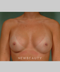 dr-robert-zubowski-breast-augmentation-b