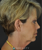 dr-goesel-anson-blepharoplasty-facelift-eyelift-chemical-peel-b