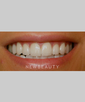 dr-joe-willardsen-veneers-teeth-whitening-cosmetic-contouring-b