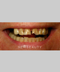 dr-joe-willardsen-veneers-crowns-gum-contouring-b