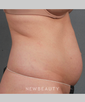 dr-amy-forman-taub-coolsculpting-by-zeltiq-b
