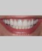 dr-ross-nash-smile-makeover-crowns-gum-contouring-veneers-b