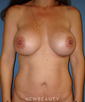 dr-sarah-mcmillan-breast-revision-tummy-tuck-b